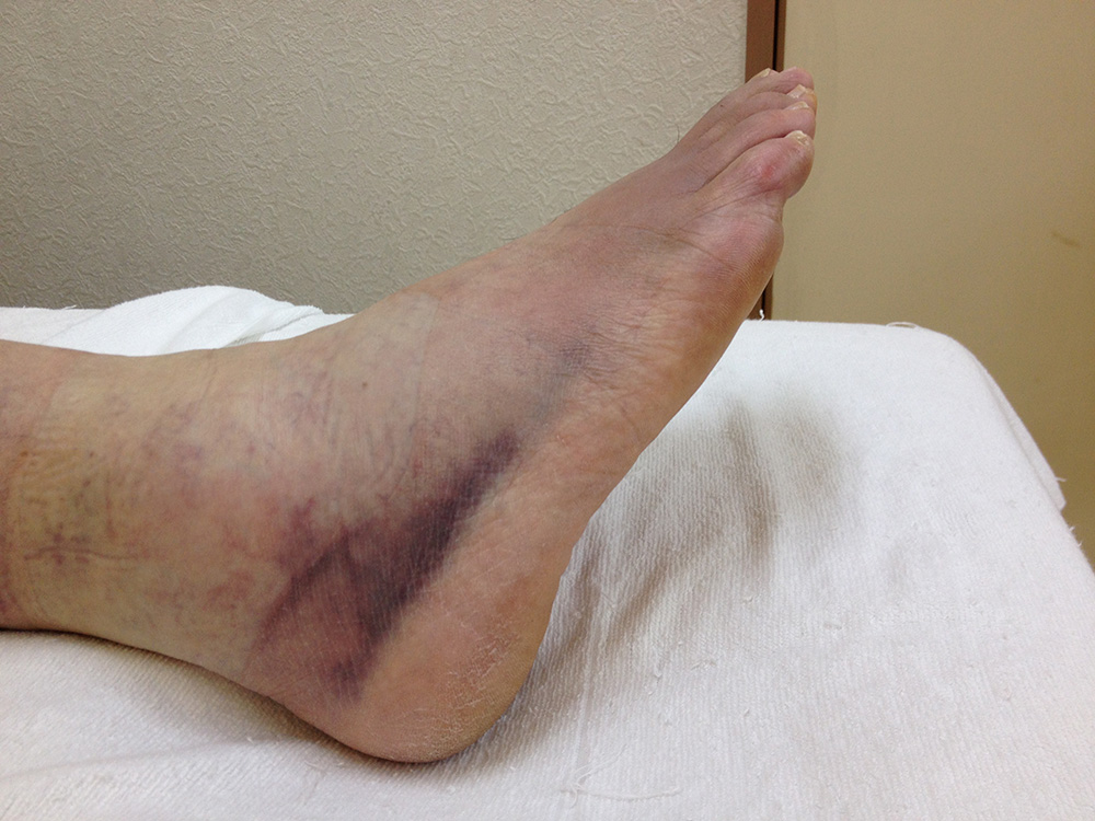 右足関節内反捻挫